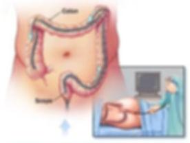 colonoscopy2.jpg