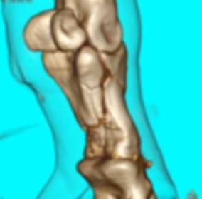 3d-reconstruction-of-p1-fracture-652x640