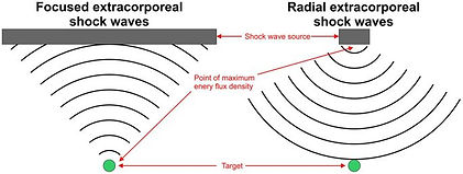 Focused VS Radial Shockwaves