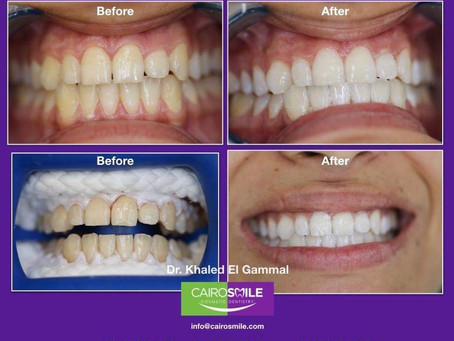 Professional teeth whitening. Promoting facts & debunking myths.
