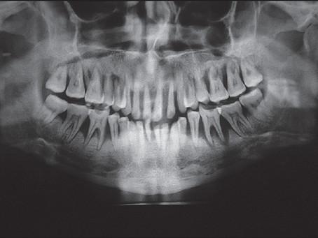 The health risks of gum disease