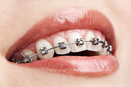 orthodontics-2.jpg