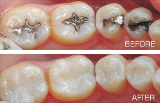 Tooth coloured composite fillings