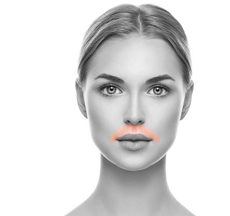 Lip Upper LHR