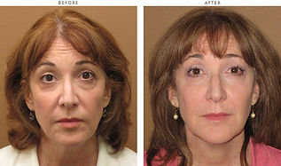 sculptra-before-and-after-pictures-02.jp