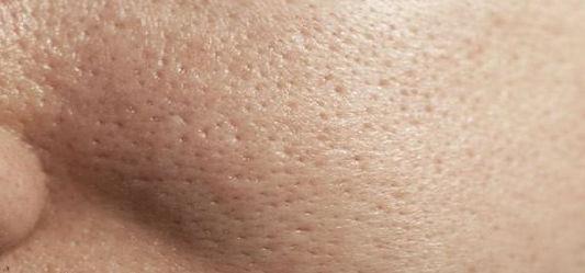 Soin Dilation des pores Dr Belter.JPG