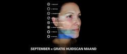 OBSERV gratis huidscan september