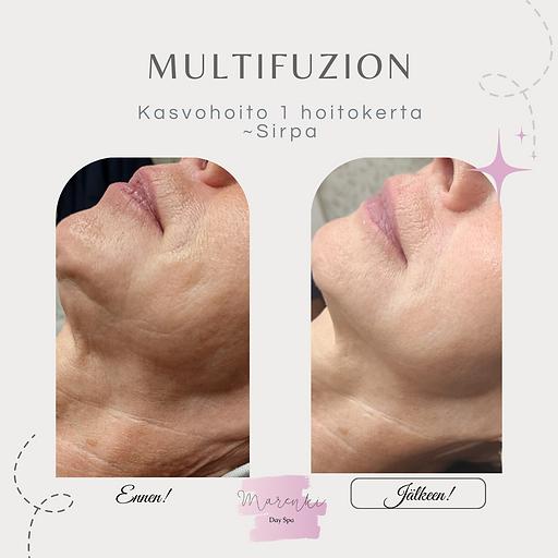 Kopio Kopio Beauty Result Before After Instagram Post.png
