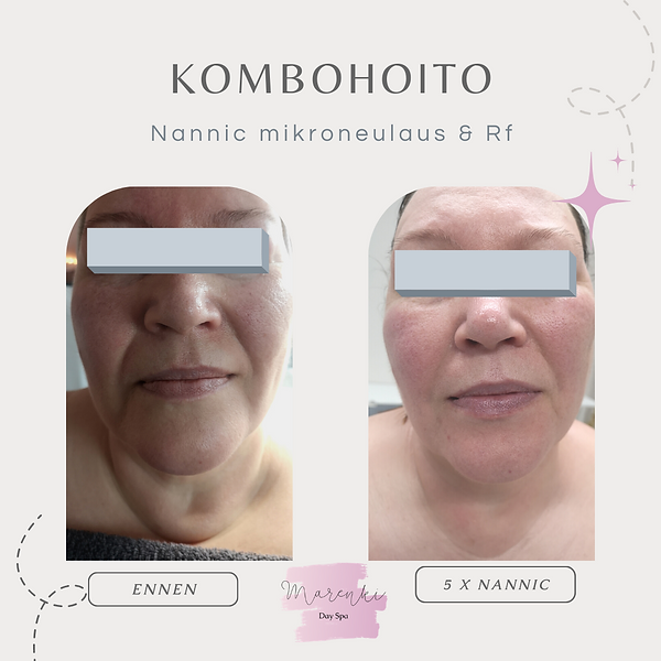 Beauty Result Before After Instagram Pos