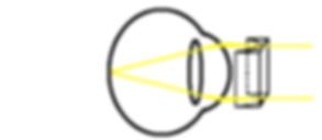 astigmatism correction diagram