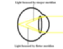 astigmatism diagram