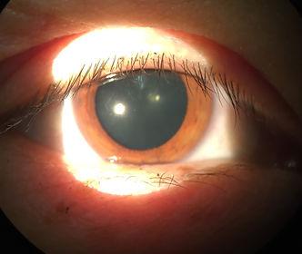 Dlated eye dilation