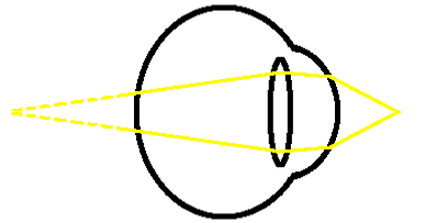 near hypermetropia unfocussed diagram