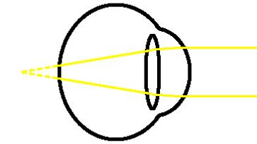 distance hypermetropia unfocussed diagram