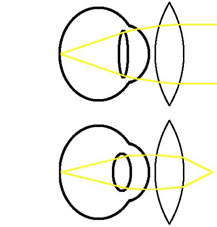 hypermetropia correction diagram