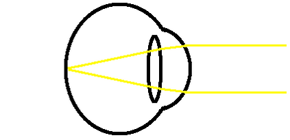 distance presbyopia diagram