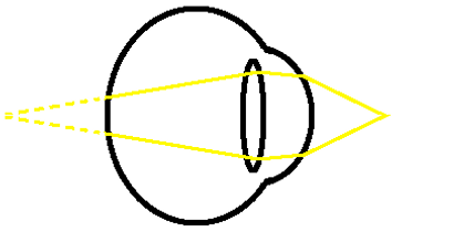 near presbyopia diagram