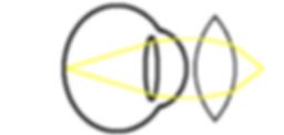 presbyopia correction diagram