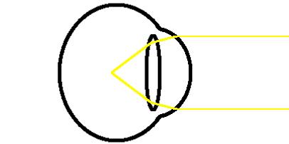 distance myopia diagram