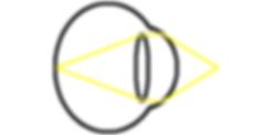 near myopia diagram