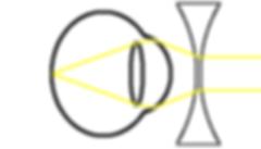 myopia correction diagram