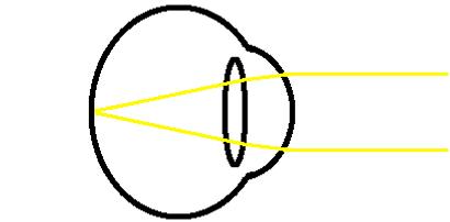 distance emetropia diagram