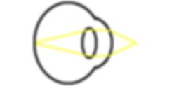 near emetropia diagram
