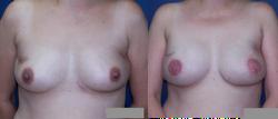 Latissimus Dorsi Flap Bilateral