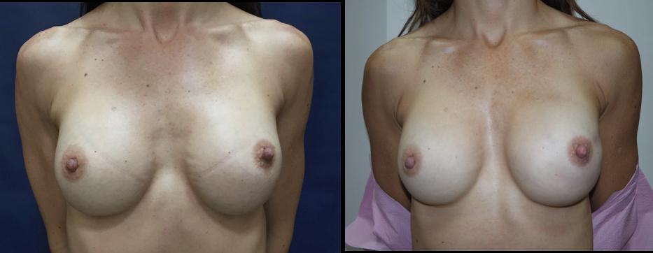 Matrices Dermales con Implantes