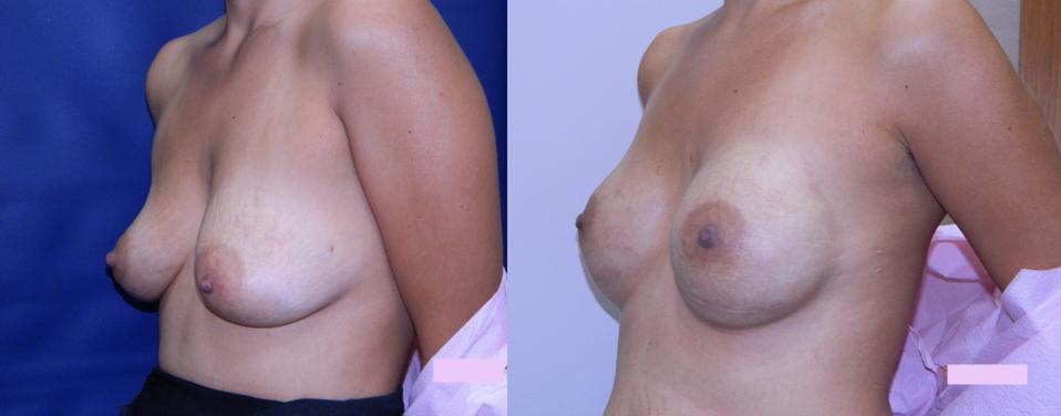 Matris Dermal con Implante