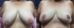 Flap Dermal con Implantes Bilaterales