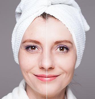 after shots - skin care, anti-aging procedures, rejuvena.jpg