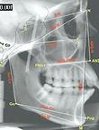 Mike+Hilgers+orthodontics+cephalometrics+HNC ortho+mission viejo+california