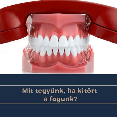 Mit tegyek, ha letört a fogam?