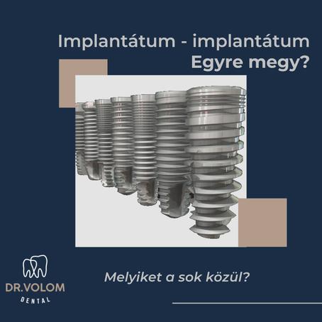 Melyik implantátumot érdemes választani fogbeültetéshez?