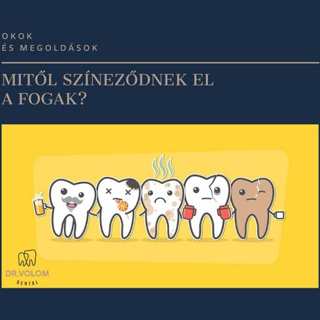 Mitől színeződhet el a fogam?