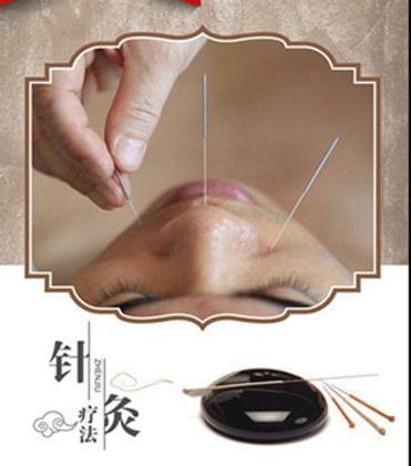 1-acupuncture_orig.jpg