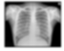 X-Ray.png