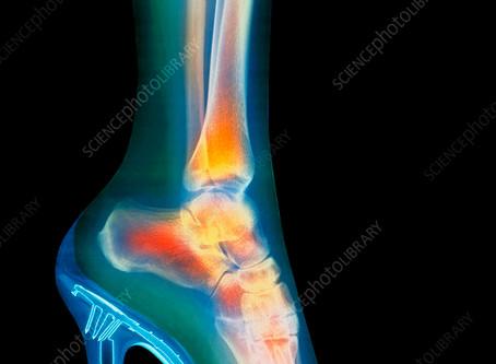 Heels: Modern day foot binding