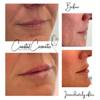 Natural looking lip augmentation to treat thin lips