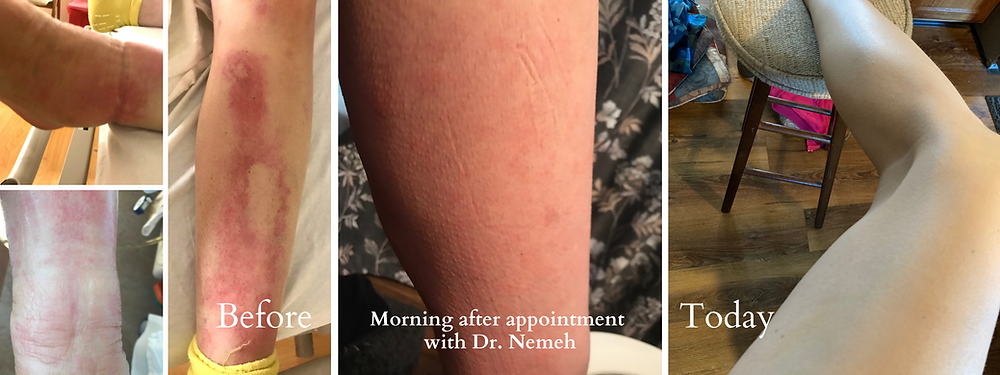Angela's leg before her appointment with Dr. Nemeh, the morning after her appointment, and what it looks like today.