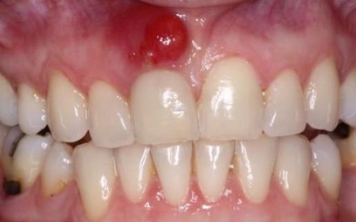 Киста в десне зуба — последствия