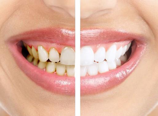 Больно ли делать чистку зубов?