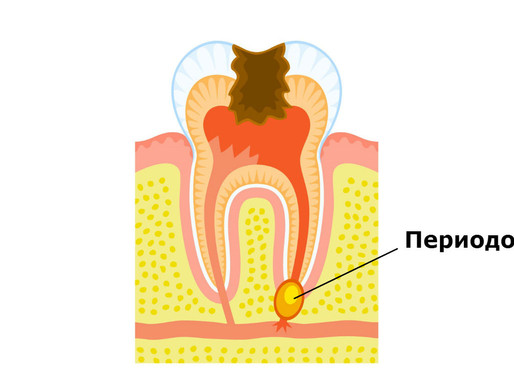 Лечение периодонтита в стоматологии Avanta
