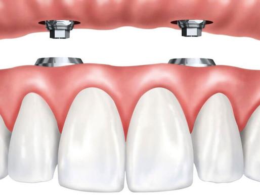 Необходимость зубного протезирования