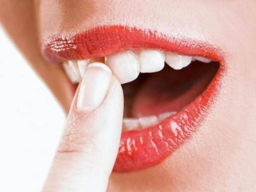 Шатаются зубы – что делать в домашних условиях