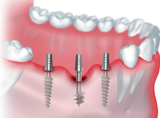 Варианты имплантации зубов