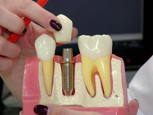 Ортопедическая стоматология в клинике Avanta