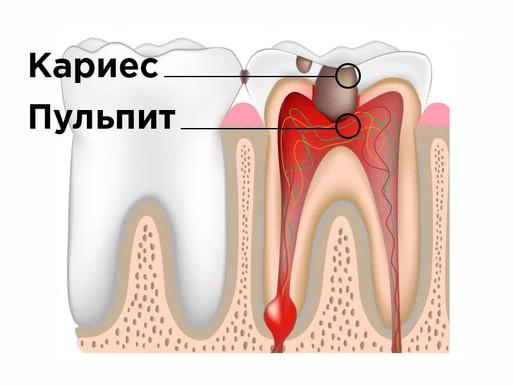 Пульпит и лечение в стоматологии Avanta