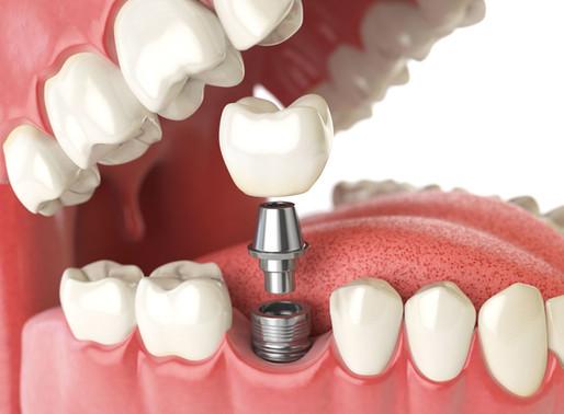 Имплантация зубов в стоматологии AVANTA